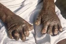 Leprha handen